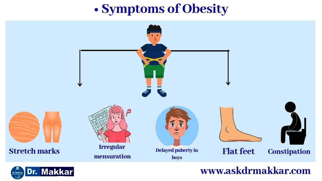 Symptoms of  Obesity weight loss statergy