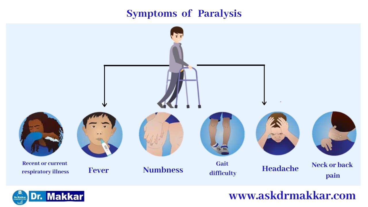 Symptoms of Paralysis || लकवा मारना पक्षाघात  के लक्षण