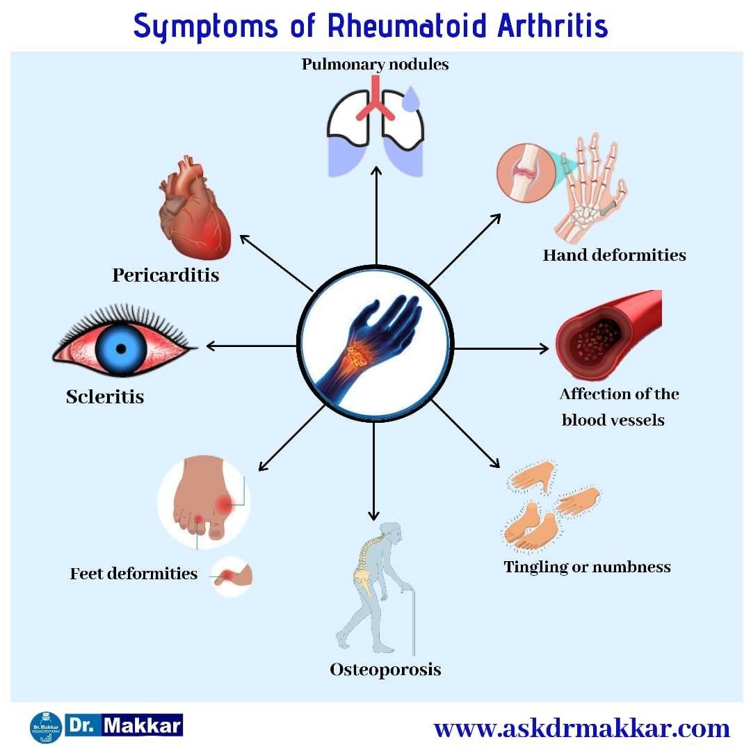 Symptoms of Rheumatoid arthritis ,scleritis,hand deformities ,feet deformities,Pericarditis,vasculitis,tingling,osteoporosis