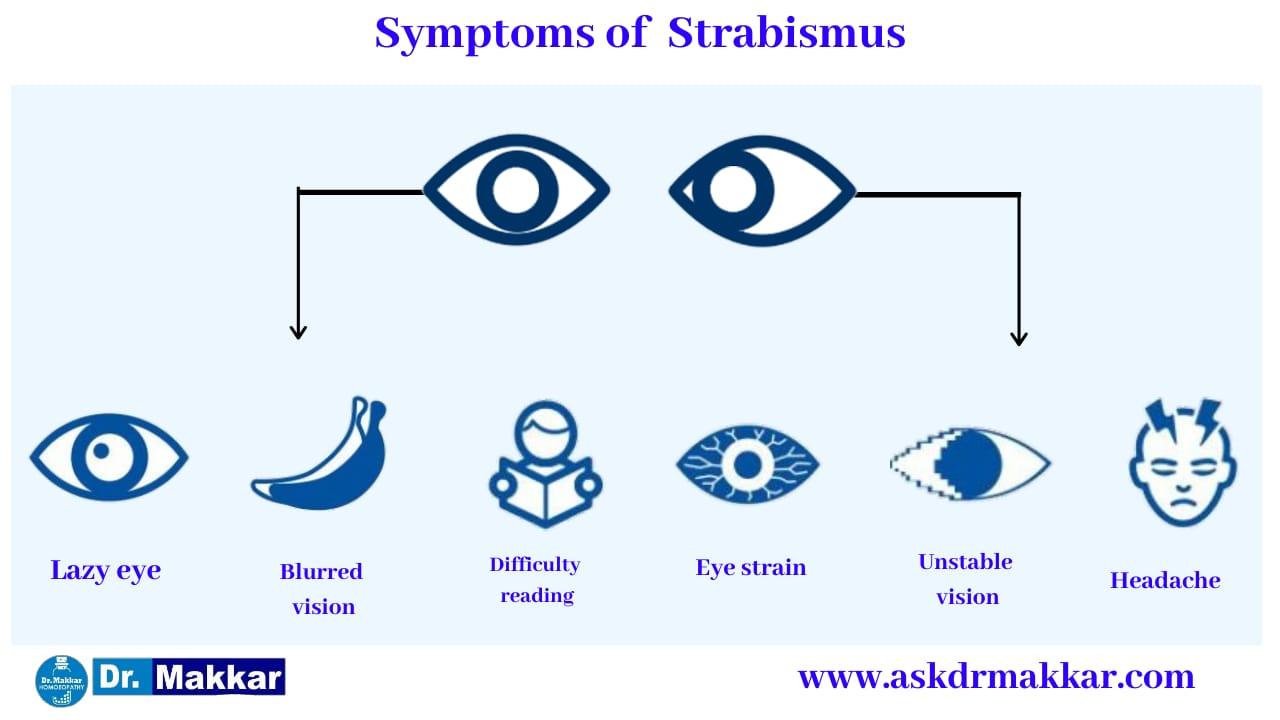 Symptoms of Strabismus Crossed Eye || भेंगापन तिर्यकदृष्टि स्ट्राबिस्मस के लक्षण