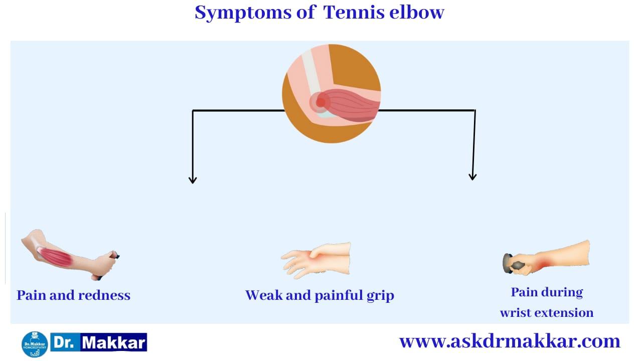 Symptoms of Tennis Elbow || टेनिस एल्बो के लक्षण के लक्षण