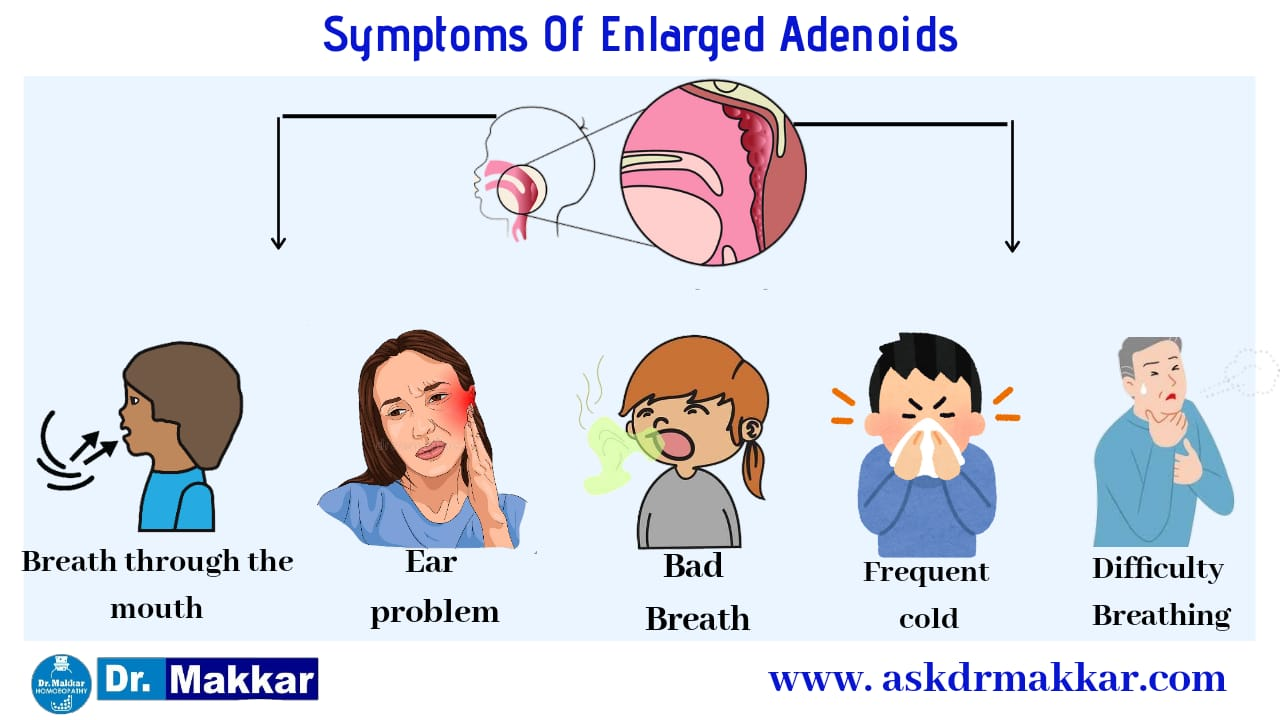 Symptoms of adenoid nasal polyp