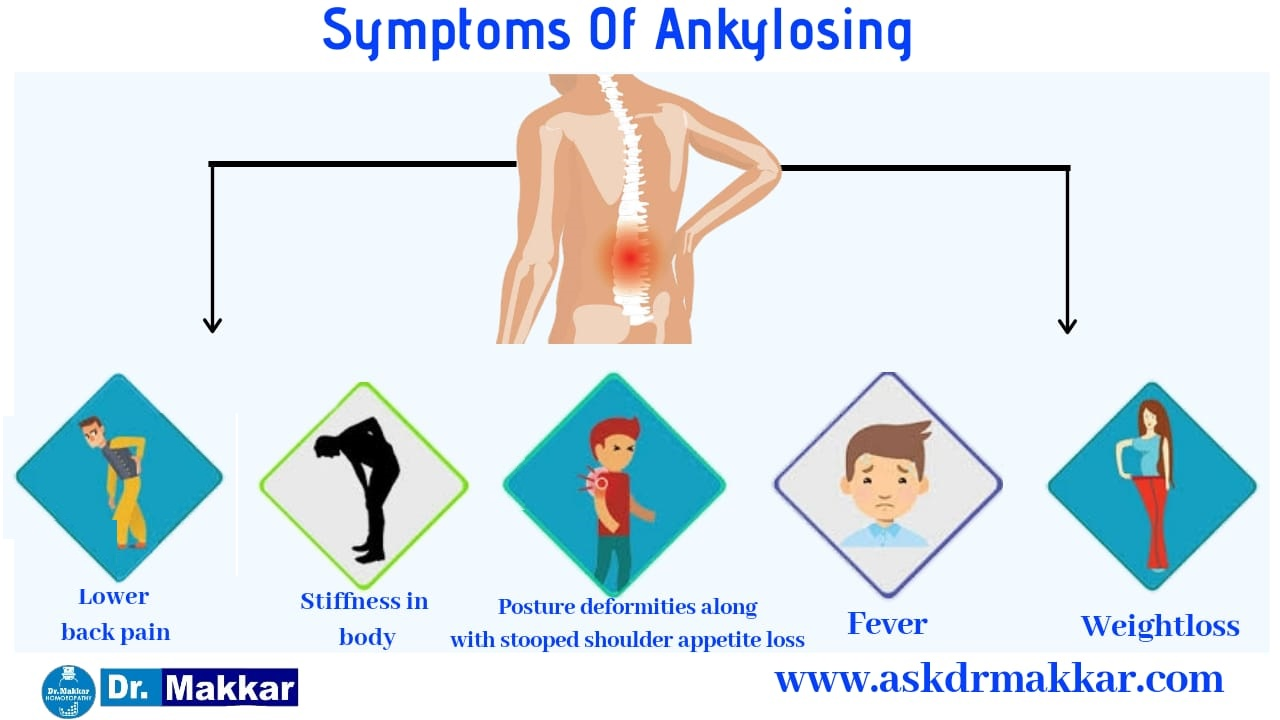 Symptoms of ankylosing Spondolysis
