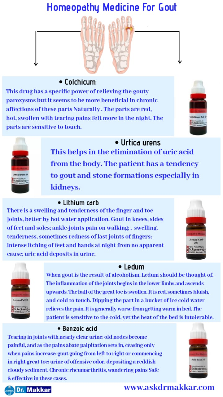 Top Homeopathic Medicine of Gout uric acid