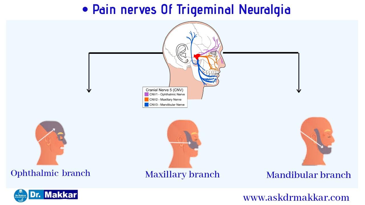 Trigeminal neuralgia nerve root suppling Face