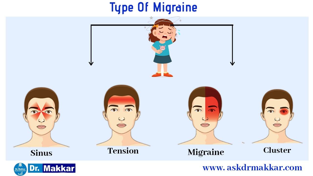 Type of Migraine
