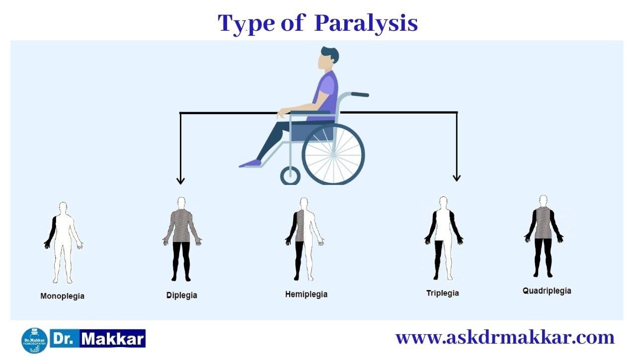 Types of Paralysis || लकवा मारना  पक्षाघात  कितने प्रकार का होता है?