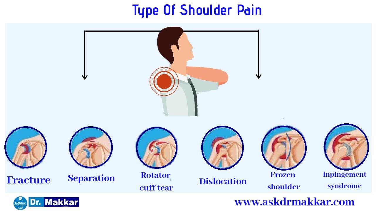 Types  of Shoulder Pain
