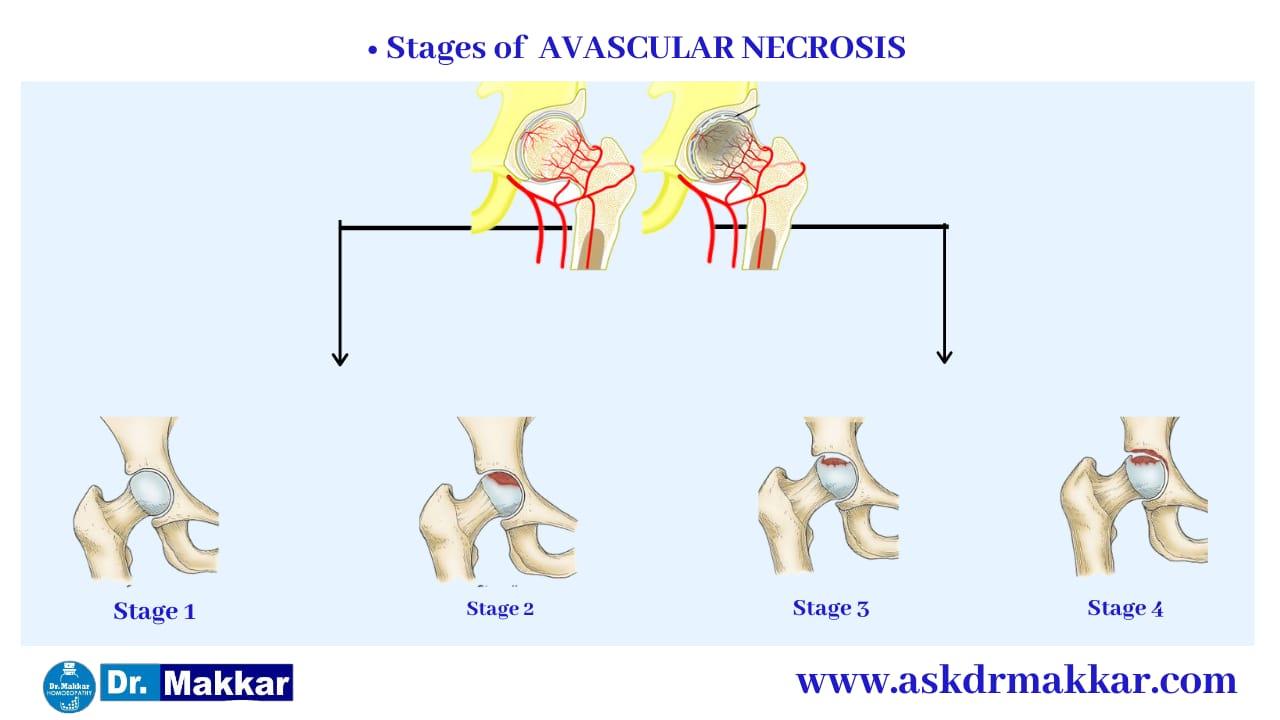 Types of Avascular Ischemic Necrosis AVN Osteonecrosis femur || एवस्कुलर इस्केमिक नेक्रोसिस एवीएन ओस्टियोनेक्रोसिस फीमर हड्डी के प्रकार