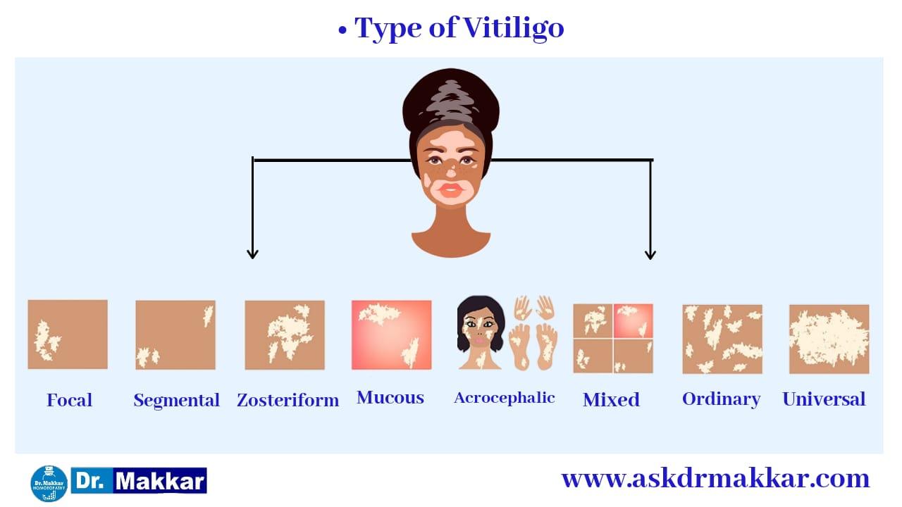 Types of Vitiligo Leucoderma white patches    विटिलिगो ल्यूकोडर्मा सफेद दाग के कई प्रकार