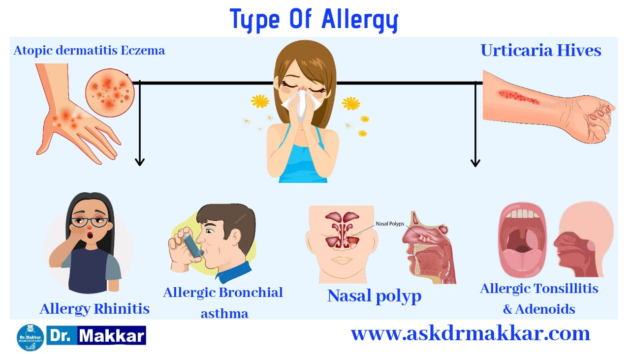 Types of allergy in body