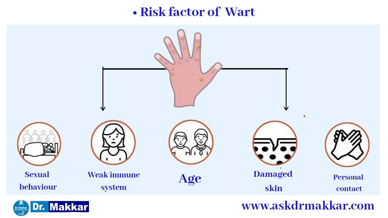 Who Gets Warts? Risk factors    कॉमन वार्ट्स मस्से का जोखिम कारक