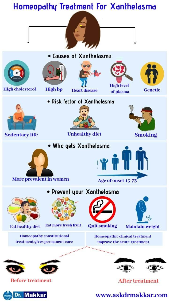 Xanthelasma homeopathic treatment