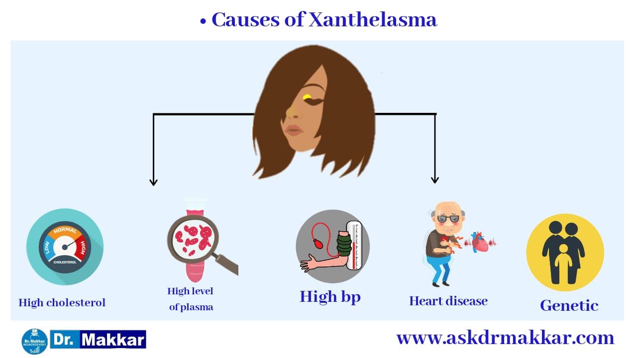 Causes of xanthelesma