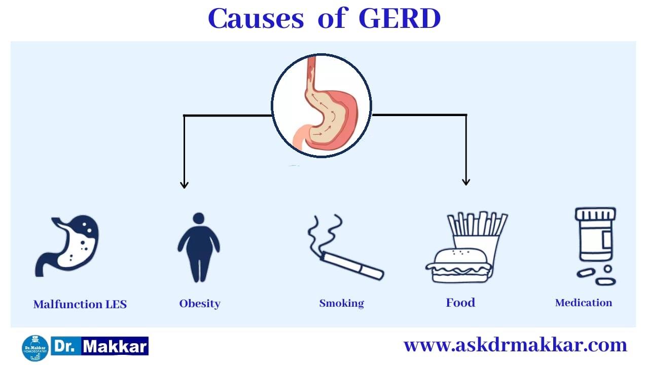 causes of Gerd Gastrooesophageal Reflux Disease ||  गर्ड गैस्ट्रोसोफेजियल रिफ्लक्स बीमारी के कारण