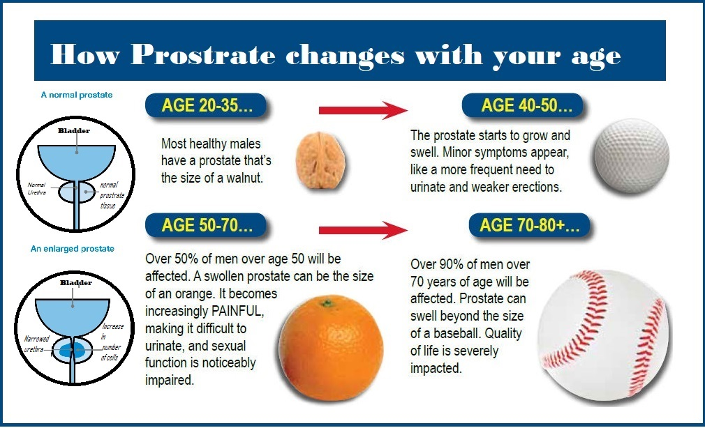 How Prostrate changes acc to your age