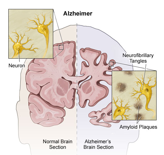 what is alzheimers disease definition symptoms and treatment Huntington's disease is a progressive disorder that causes the brain to lose nerve cells, affecting the part of the brain that regulates mood, movement and cognitive skills about 30,000 people in the united states have huntington's disease to date, there is no known cure, so the management of symptoms is the primary focus of treatment.