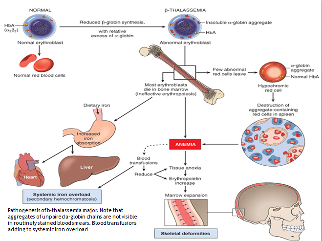 alpha thalassemia in adults