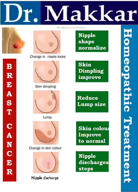 Holistic treatment for breast cancer