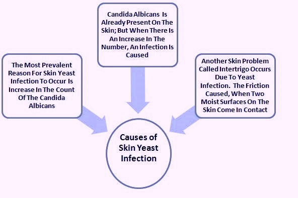 yeast infection in humans