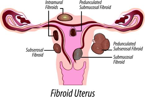 Getting Pregnant At 40 With Fibroids