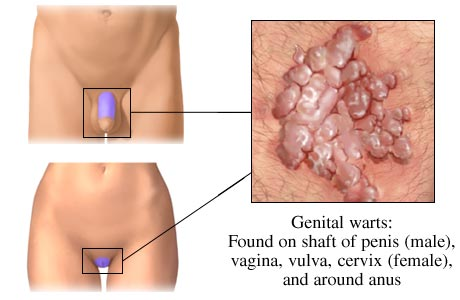 common warts on legs. WARTS-overview