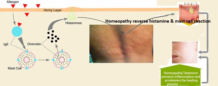 Urticaria hives Homeopathic Treatment Skin allergic reaction