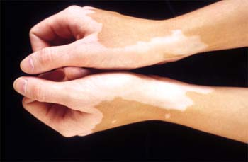 White patches treatment in homeopathy