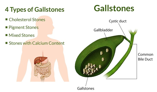 Liver gall bladder stones types