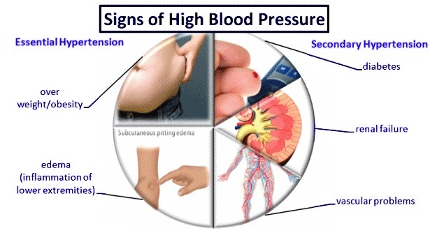 Image result for homeopathic treatment of high blood pressure