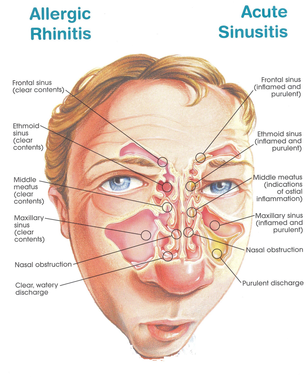 Sinusitis Homeopathic Treatment