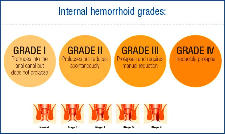 Piles Hemorrhoids Homeopathic Treatment