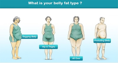 Belly type in obesity
