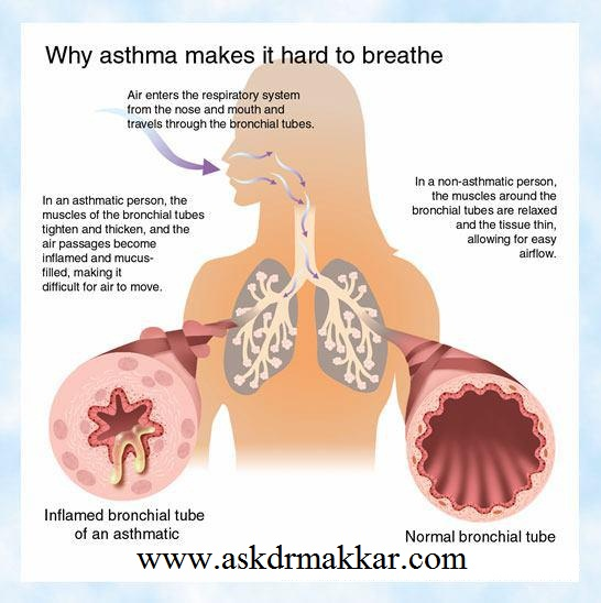 why & how asthma make breathing difficulty
