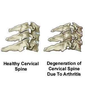 Study of current pattern of Cervical Spondylotic Myelopathy and to ev    Cervical Spinal Stenosis