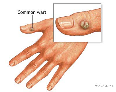 common warts on fingers. Who Gets Warts ?