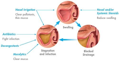 steroid nasal spray ear infection