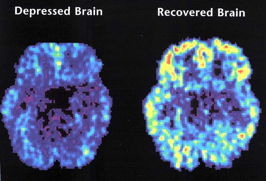 brain in depression CT case