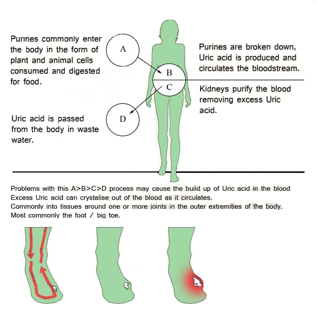 does gout affect your toes alkaline water reduce uric acid best home remedy for high uric acid