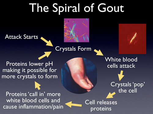 gout medication walgreens what causes excess uric acid in urine acute gout in hand