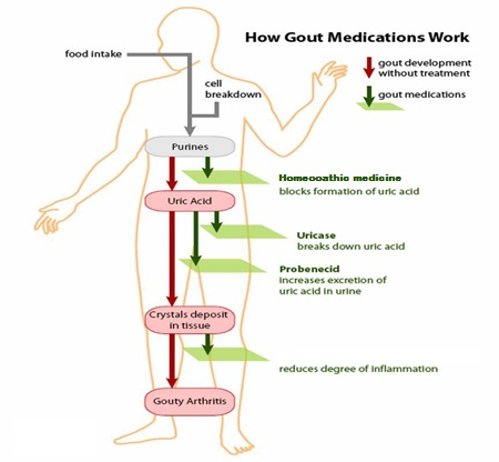 Homeopathic treatment  of gout explainer