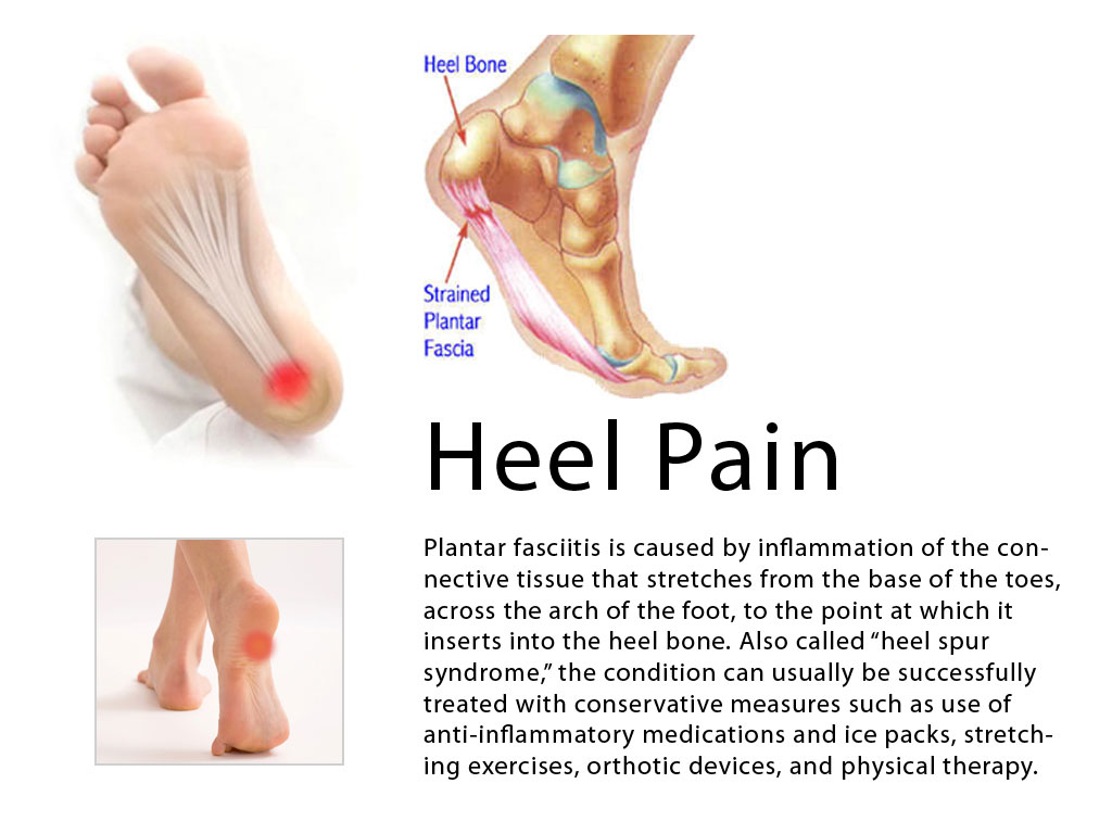 Pain in heel of foot that comes and goes
