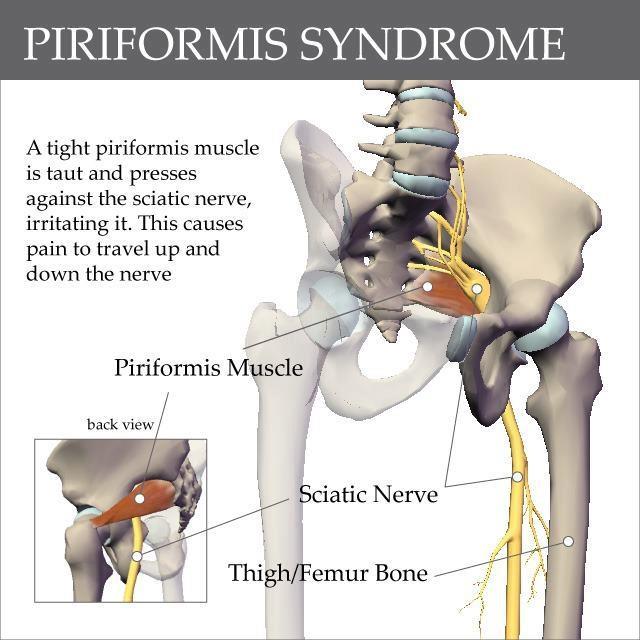 Piriformis syndrome relationship to sciatica