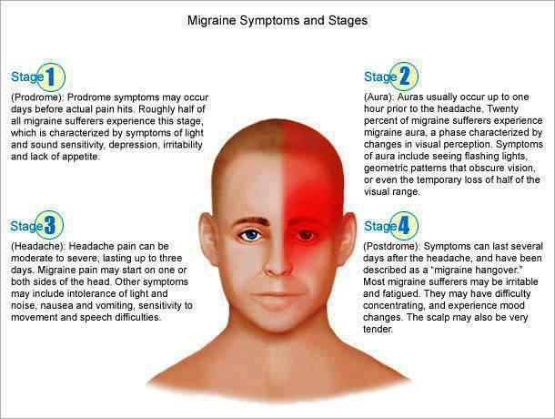 Migraine stages prodrome,Aura,Pain Phase