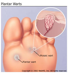 Genital warts without sexual contact