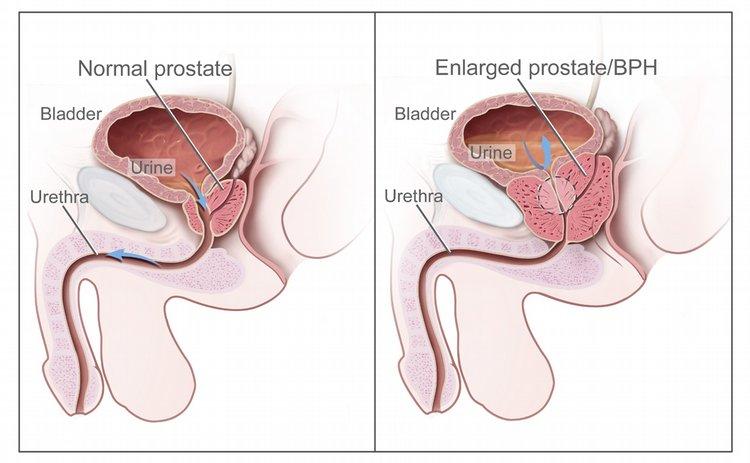 Prostate residual urine volume in bladder