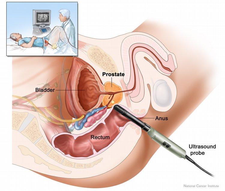rectal ultrasound