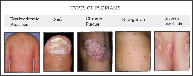 Mild to moderate forms of psoriasis 2