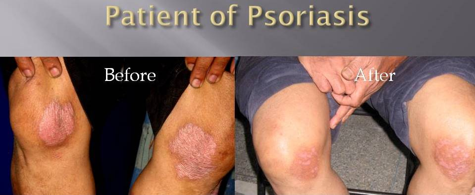 Treated case of psoriasis
