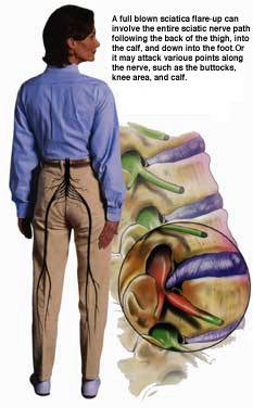 Sciatica refers to pain that begins in the hip and buttocks and continues all the way down the leg. This condition is often accompanied by low back pain, which can be more or less severe than the leg pain.